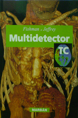 Multidetector TC Flexilibro