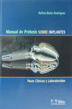 Manual de Protesis Sobre Implantes