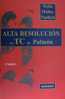 Alta Resolucion en TC de Pulmon