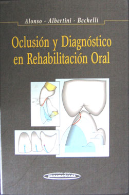 Oclusion Diagnostico y Rehabilitacion