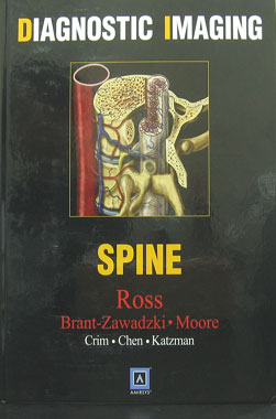 Diagnostic Imaging - Spine