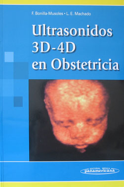 Ultrasonidos 3D-4D en Obstetricia