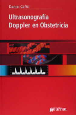 Ultrasonografia Doppler en Obstetricia
